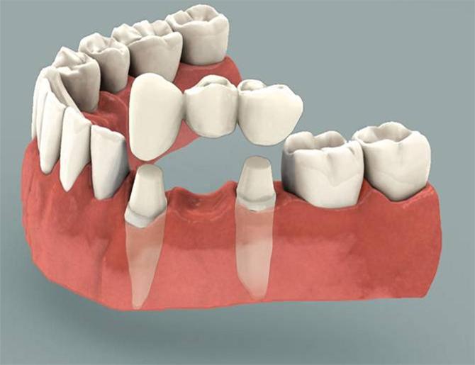 Ceramic & Metal Free Dental Bridge, Caps & Crowns for