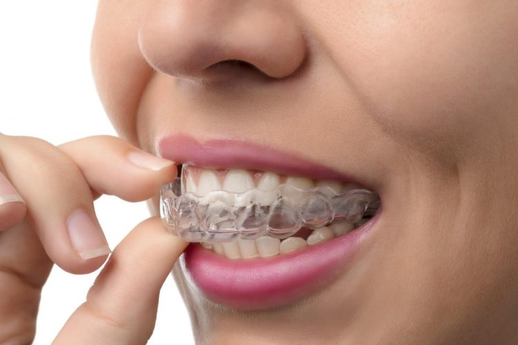 Invisible Braces Specialist