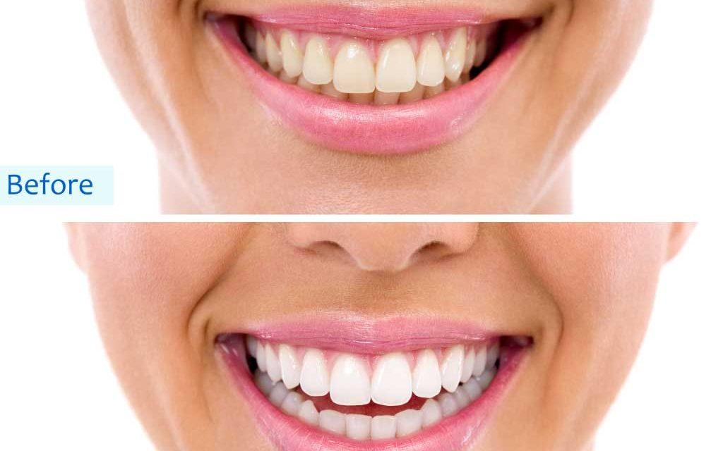 Teeth whitening in Vasant Kunj