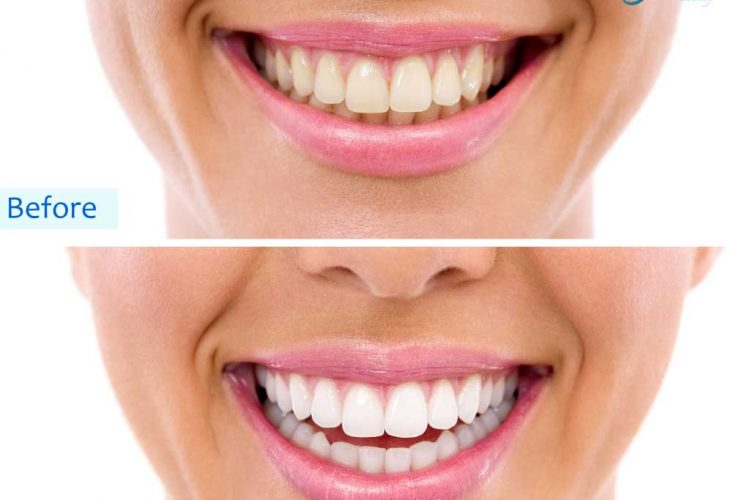 Teeth whitening in Vasant Kunj