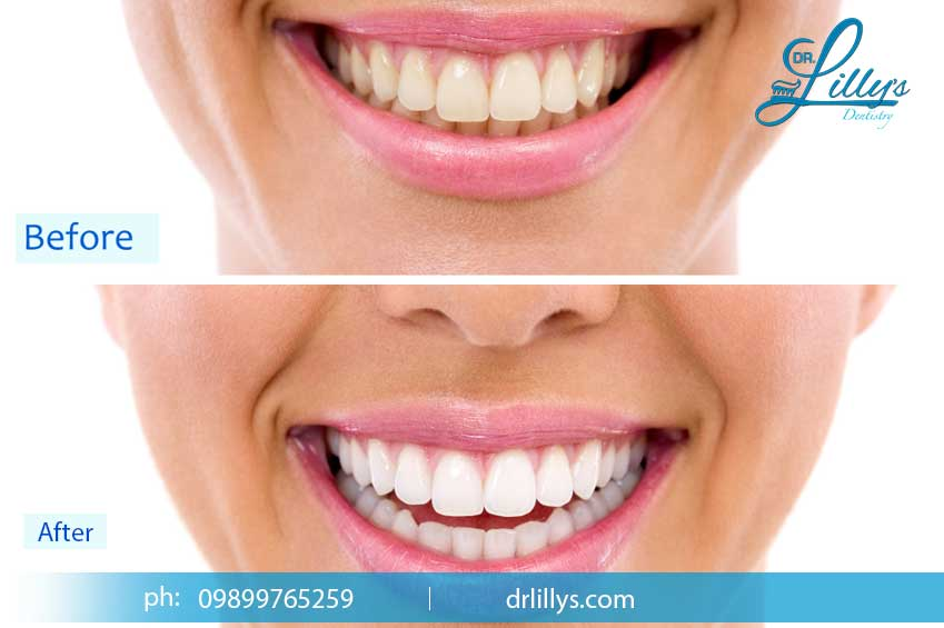 Teeth whitening in Delhi
