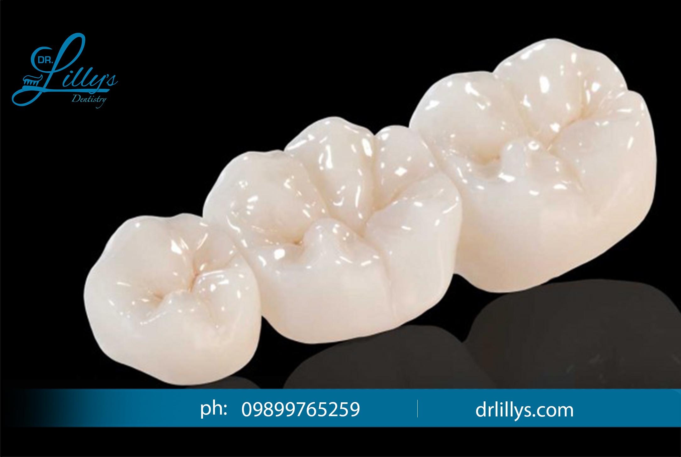 Metal free dentistry in vasant kunj
