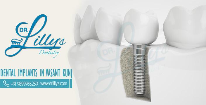 Dental implant in vasant kunj