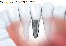 Implant dentist in vasant kunj