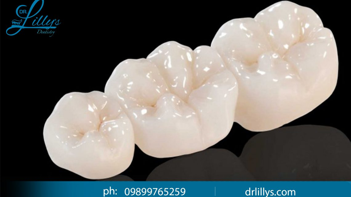 Metal free dentistry in vasant kunj